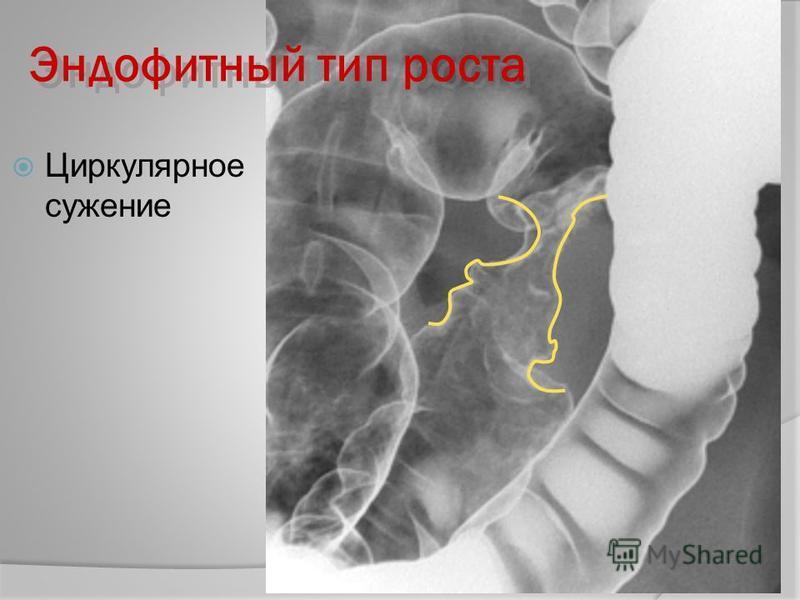 Циркулярное сужение Эндофитный тип роста