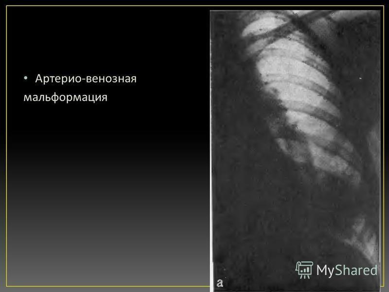 Артерио - венозная мальформация