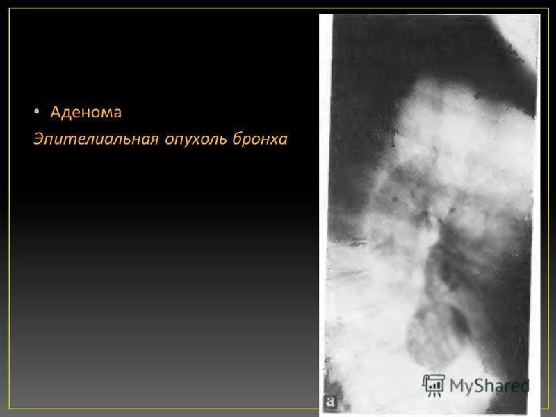 Аденома Эпителиальная опухоль бронха