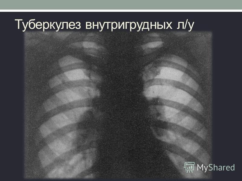 Туберкулез внутригрудных л/у