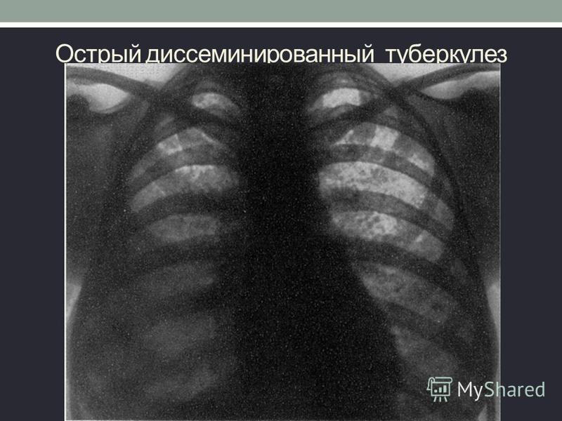 Острый диссеминированный туберкулез