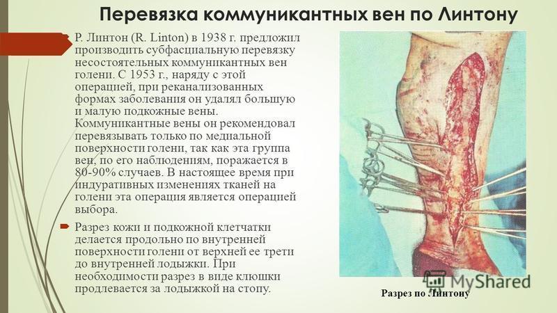 Перевязка коммуникантных вен по Линтону Р. Линтон (R. Linton) в 1938 г. предложил производить субфасциальную перевязку несостоятельных коммуникантных вен голени. С 1953 г., наряду с этой операцией, при неканализованных формах заболевания он удалял бо