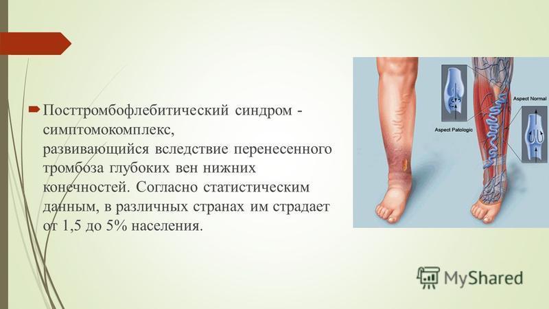 Посттромбофлебитический синдром - симптомокомплекс, развивающийся вследствие перенесенного тромбоза глубоких вен нижних конечностей. Согласно статистическим данным, в различных странах им страдает от 1,5 до 5% населения.