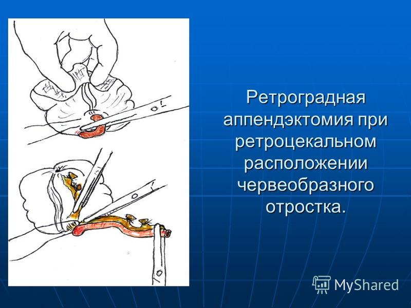 Ретроградная аппендэктомия при ретроцекальном расположении червеобразного отростка.