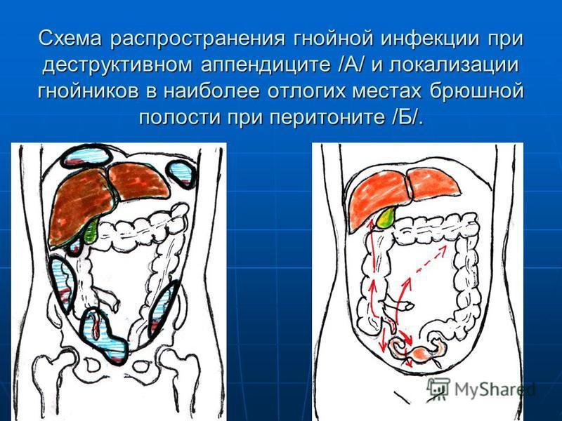 Схема распространения гнойной инфекции при деструктивном аппендиците /А/ и локализации гнойников в наиболее отлогих местах брюшной полости при перитоните /Б/.