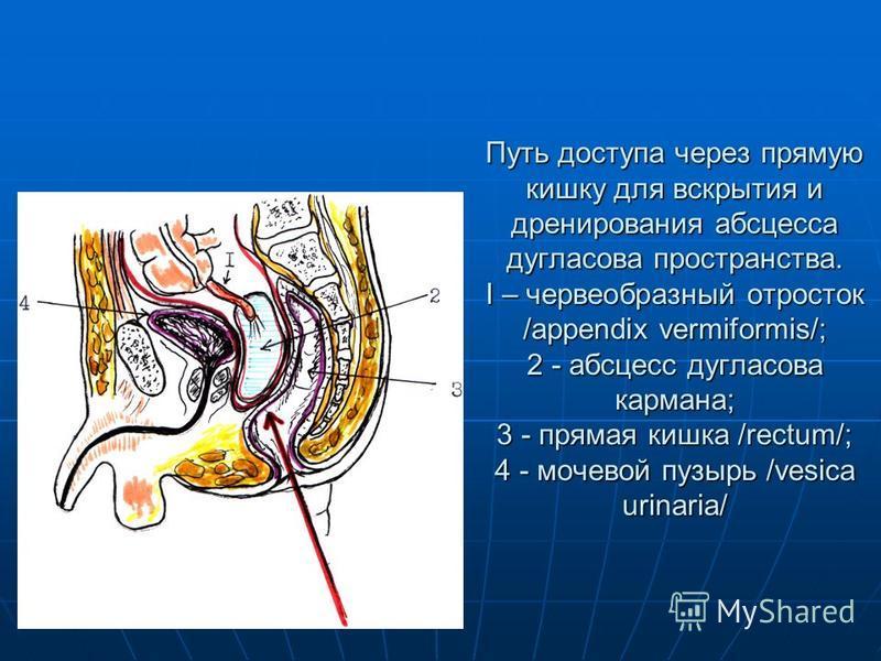 Путь доступа через прямую кишку для вскрытия и дренирования абсцесса дугласова пространства. I – червеобразный отросток /appendix vermiformis/; 2 - абсцесс дугласова кармана; 3 - прямая кишка /rectum/; 4 - мочевой пузырь /vesica urinaria/