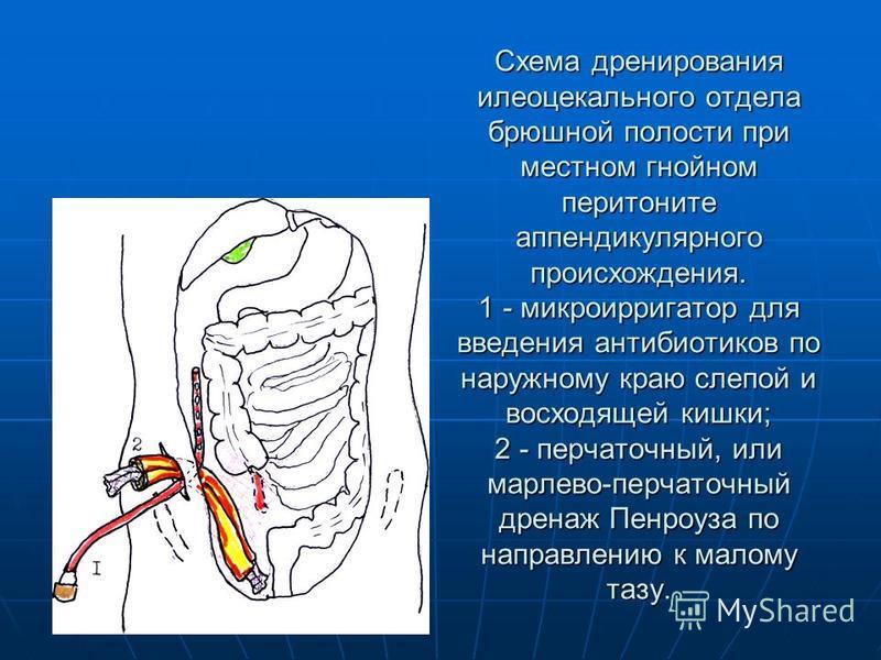 Схема дренирования илеоцекального отдела брюшной полости при местном гнойном перитоните аппендикулярного происхождения. 1 - микроирригатор для введения антибиотиков по наружному краю слепой и восходящей кишки; 2 - перчаточный, или марлево-перчаточный