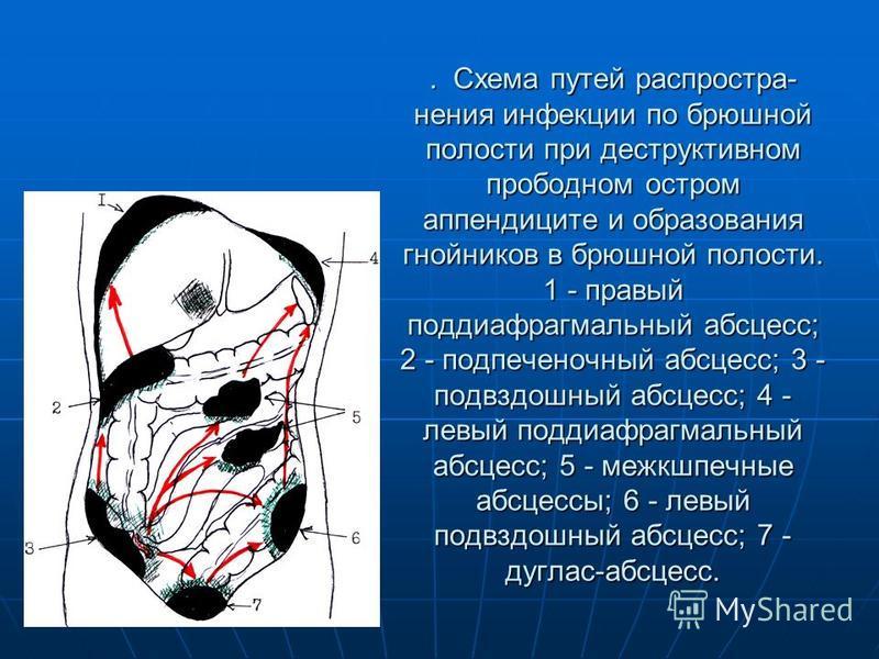 . Схема путей распростра нения инфекции по брюшной полости при деструктивном прободном остром аппендиците и образования гнойников в брюшной полости. 1 - правый поддиафрагмальный абсцесс; 2 - подпеченочный абсцесс; 3 - подвздошный абсцесс; 4 - левый