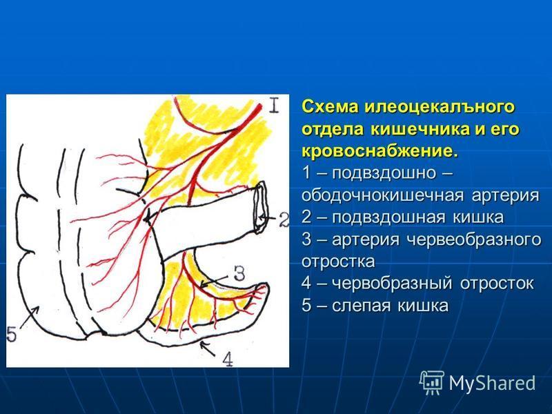 Схема илеоцекального отдела кишечника и его кровоснабжение. 1 – подвздошно – ободочнокишечная артерия 2 – подвздошная кишка 3 – артерия червеобразного отростка 4 – червеобразный отросток 5 – слепая кишка
