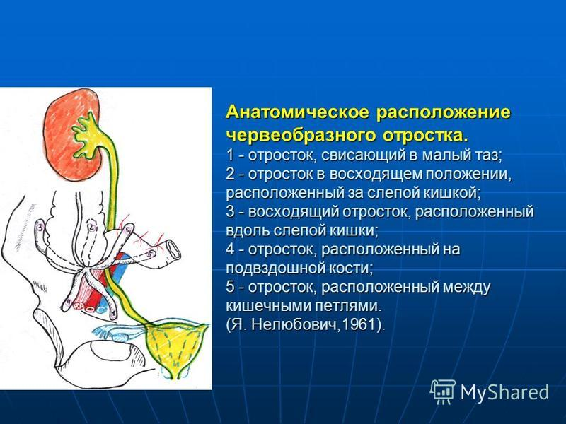 Анатомическое расположение червеобразного отростка. 1 - отросток, свисающий в малый таз; 2 - отросток в восходящем положении, расположенный за слепой кишкой; 3 - восходящий отросток, расположенный вдоль слепой кишки; 4 - отросток, расположенный на