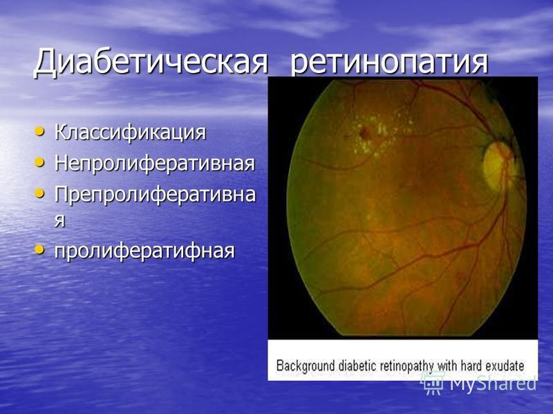 Диабетическая ретинопатия Классификация Классификация Непролиферативная Непролиферативная Препролиферативна я Препролиферативна я пролиферативная пролиферативная