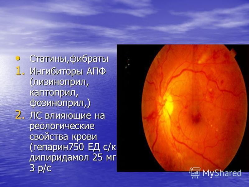 Статины,фибраты Статины,фибраты 1. Ингибиторы АПФ (лизиноприл, каптоприл, фозиноприл,) 2. ЛС влияющие на реологические свойства крови (гепарин 750 ЕД с/к дипиридамол 25 мг 3 р/с