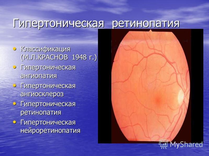 Гипертоническая ретинопатия Классификация (М.Л.КРАСНОВ 1948 г.) Классификация (М.Л.КРАСНОВ 1948 г.) Гипертоническая ангиопатия Гипертоническая ангиопатия Гипертоническая ангиосклероз Гипертоническая ангиосклероз Гипертоническая ретинопатия Гипертонич