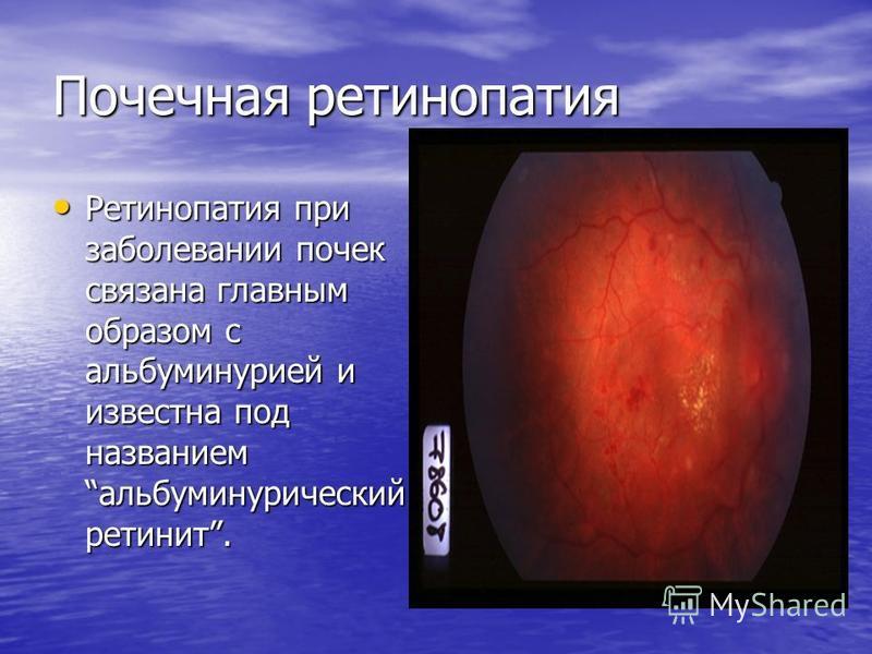 Почечная ретинопатия Ретинопатия при заболевании почек связана главным образом с альбуминурией и известна под названиемальбуминурический ретинит. Ретинопатия при заболевании почек связана главным образом с альбуминурией и известна под названиемальбум