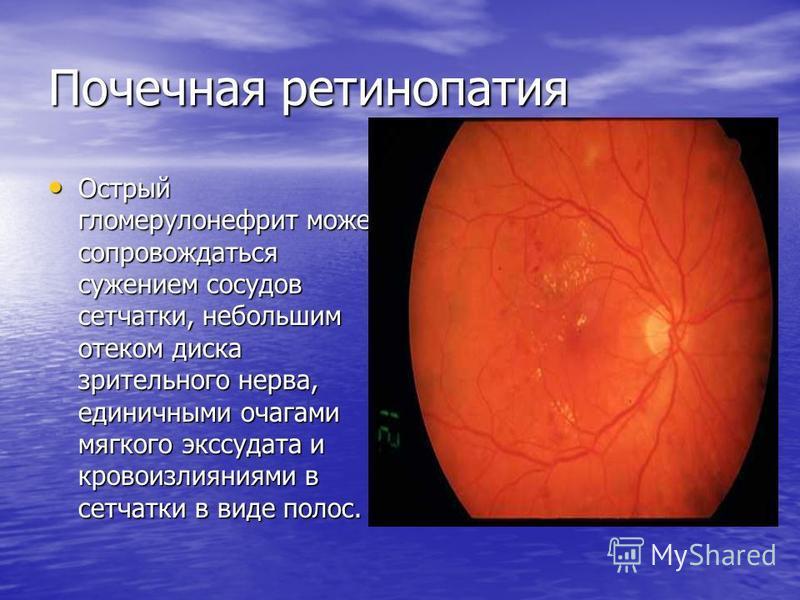 Почечная ретинопатия Острый гломерулонефрит может сопровождаться сужением сосудов сетчатки, небольшим отеком диска зрительного нерва, единичными очагами мягкого экссудата и кровоизлияниями в сетчатки в виде полос. Острый гломерулонефрит может сопрово