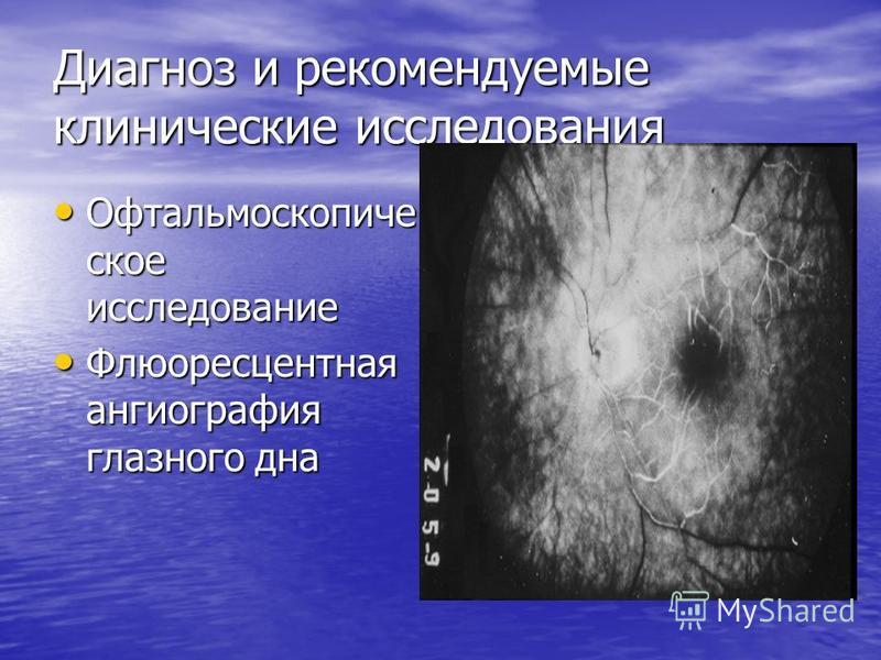 Диагноз и рекомендуемые клинические исследования Офтальмоскопиче скот исследование Офтальмоскопиче скот исследование Флюоресцентная ангиография глазного дна Флюоресцентная ангиография глазного дна