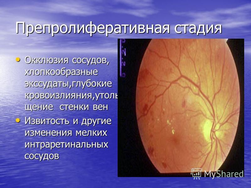 Препролиферативная стадия Окклюзия сосудов, хлопкообразные экссудаты,глубокие кровоизлияния,утоли щение стенки вен Окклюзия сосудов, хлопкообразные экссудаты,глубокие кровоизлияния,утоли щение стенки вен Извитость и другие изменения мелких интраретин