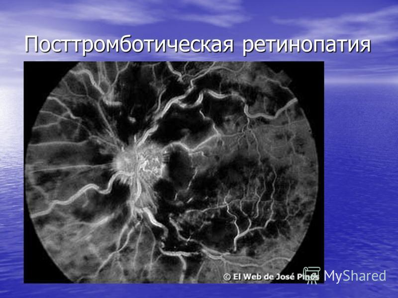 Посттромботическая ретинопатия