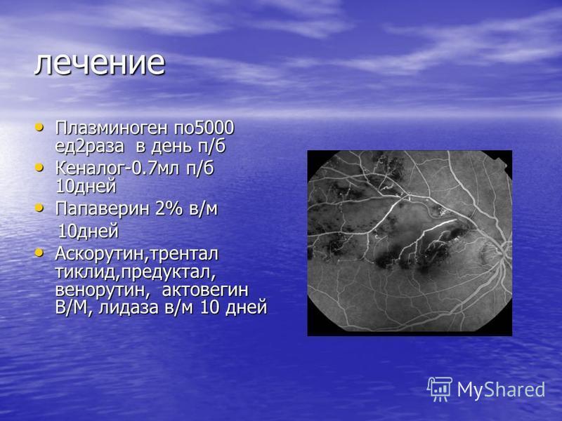 лечение Плазминоген по 5000 ед 2 раза в день п/б Плазминоген по 5000 ед 2 раза в день п/б Кеналог-0.7 мл п/б 10 дней Кеналог-0.7 мл п/б 10 дней Папаверин 2% в/м Папаверин 2% в/м 10 дней 10 дней Аскорутин,трентал тиклид,предуктал, венорутин, актовегин
