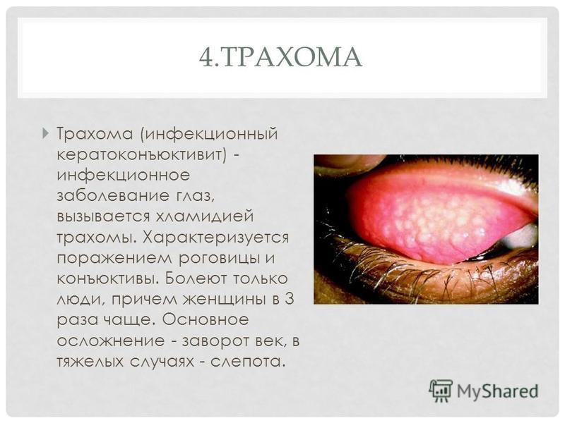 4. ТРАХОМА Трахома (инфекционный кератоконъюнктивит) - инфекционное заболевание глаз, вызывается хламидией трахомы. Характеризуется поражением роговицы и конъюнктивы. Болеют только люди, причем женщины в 3 раза чаще. Основное осложнение - заворот век