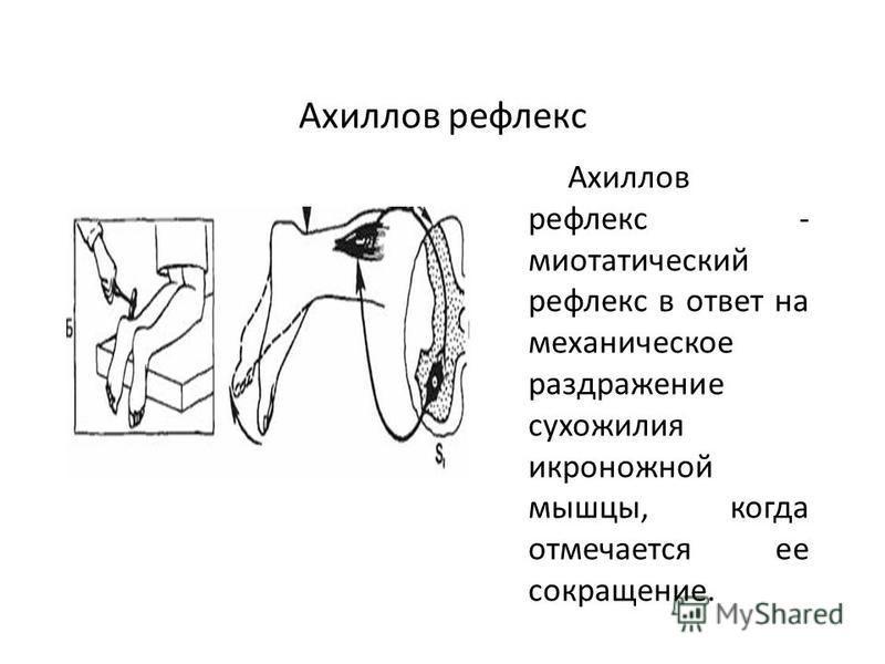 Ахиллов рефлекс Ахиллов рефлекс - миотатический рефлекс в ответ на механическое раздражение сухожилия икроножной мышцы, когда отмечается ее сокращение.