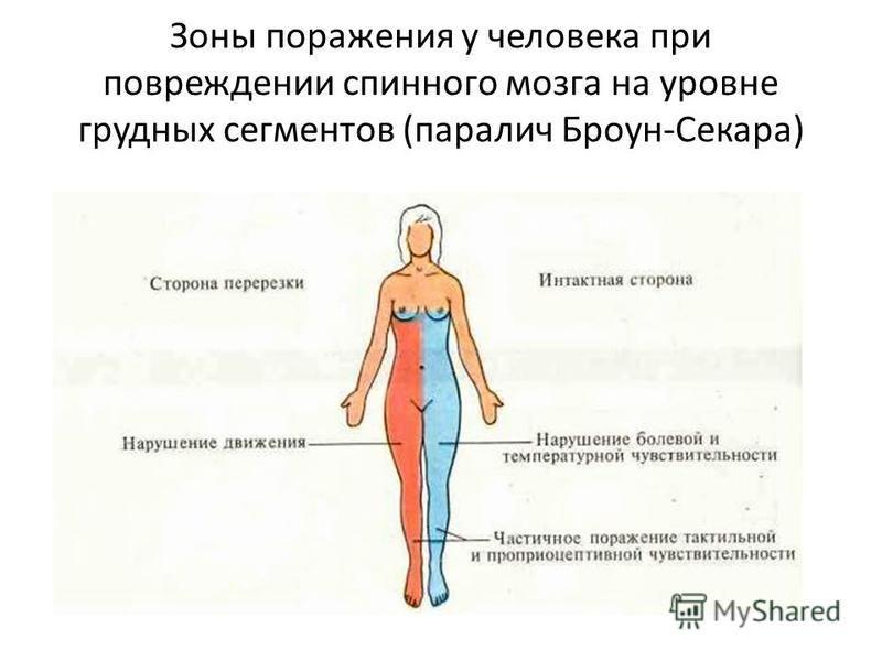Зоны поражения у человека при повреждении спинного мозга на уровне грудных сегментов (паралич Броун-Секара)