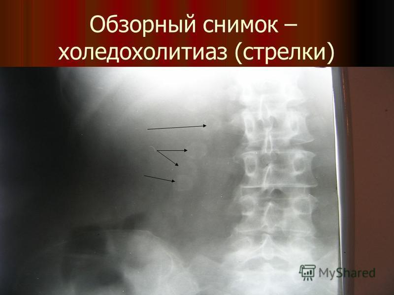 Обзорный снимок – холедохолитиаз (стрелки)