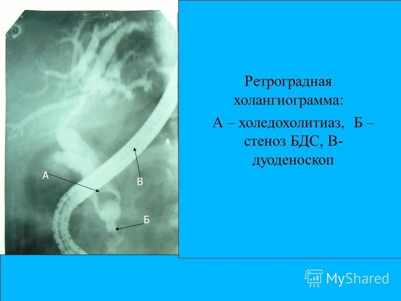 Ретроградная холангиограмма: А – холедохолитиаз, Б – стеноз БДС, В- дуоденоскоп А Б В