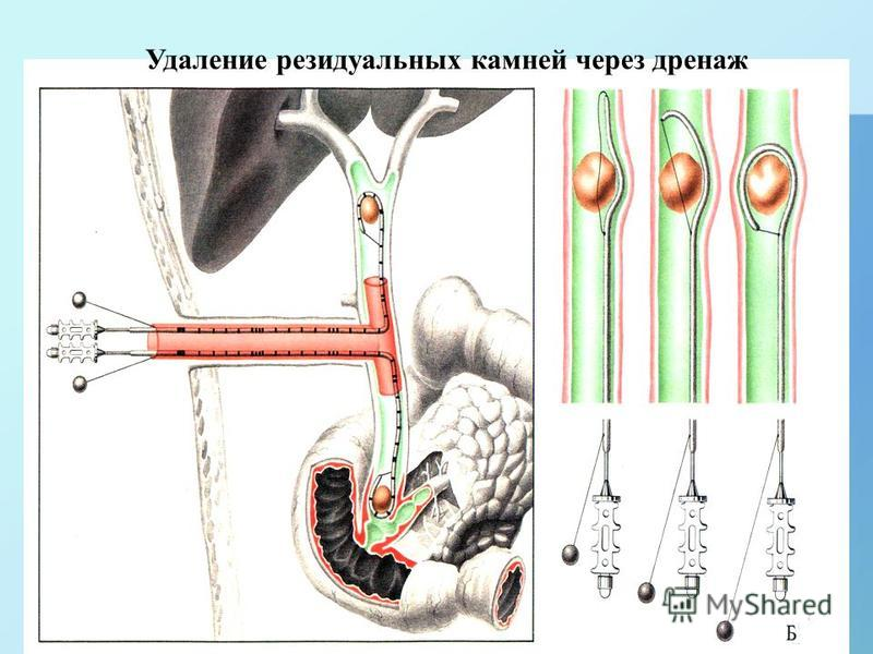 Удаление резидуальных камней через дренаж