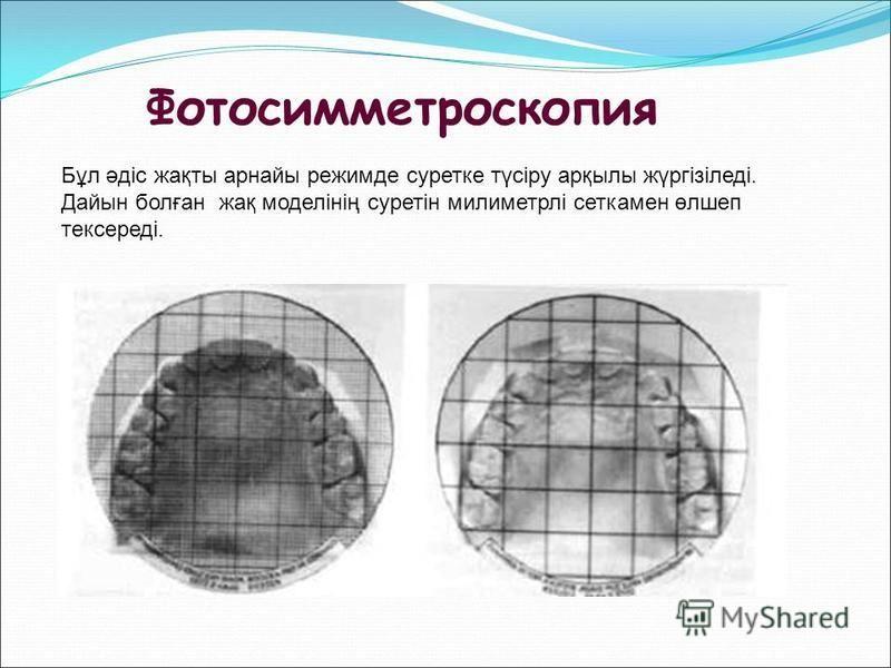 Фотосимметроскопия Бұл әдіс дақты арнайы режимде суретке түсіру арқылы жүргізіледі. Дайын болған дақ моделінің суретін милиметрлі сетка мен өлшееп тексереді.