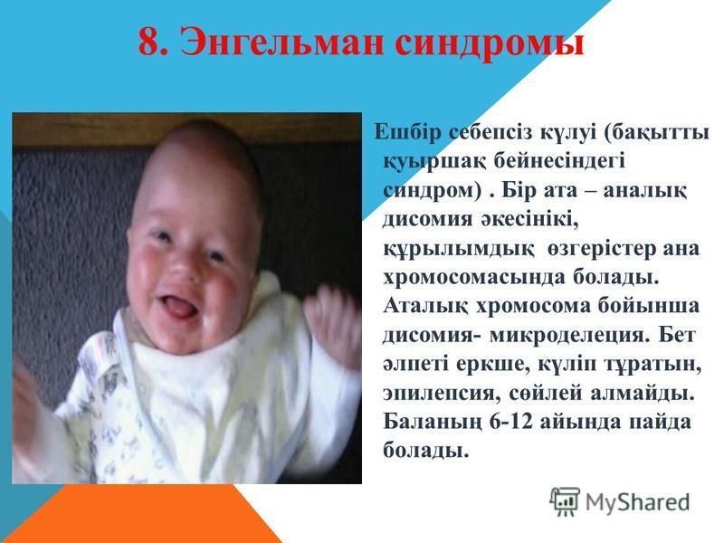 Ешбір себепсіз күлуі (бақытты қуыршақ бейнесіндегі синдром). Бір ата – анналық дисомия әкесінікі, құрылымдық өзгерістер анна хромосомасында болады. Аталық хромосома бойынша дисомия- микроделеция. Бет әлпеті еркше, күліп тұратын, эпилепсия, сөйлей алм