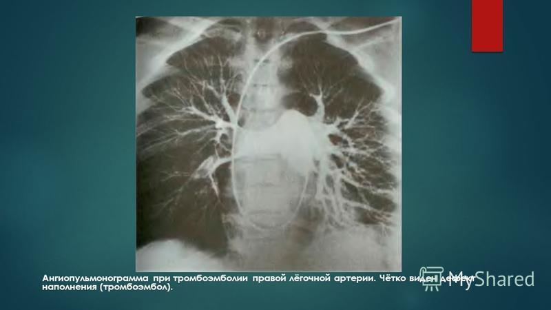 Ангиопульмонограмма при тромбоэмболииии правой лёгочной артерии. Чётко виден дефект наполнения (тромбоэмболии).