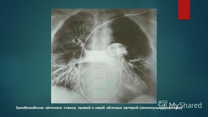 Тромбоэмболия лёгочного ствола, правой и левой лёгочных артерий (ангиопульмонограмма)
