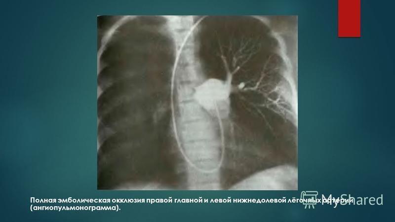 Полная эмболическая окклюзия правой главной и левой нижнедолевой лёгочных артерий (ангиопульмонограмма).