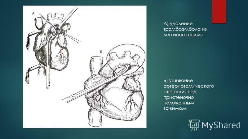 А) удаление тромбоэмболииа из лёгочного ствола Б) ушивание артериотомического отверстия над пристеночно наложенным зажимом.