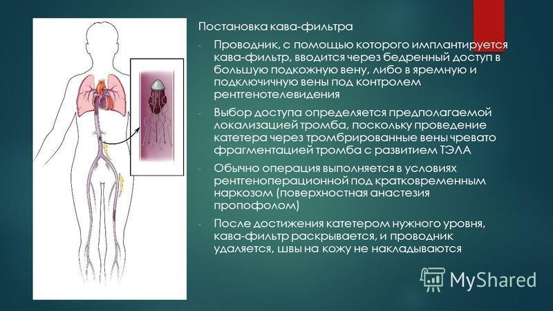 Постановка кава-фильтра - Проводник, с помощью которого имплантируется кава-фильтр, вводится через бедренный доступ в большую подкожную вену, либо в яремную и подключичную вены под контролем рентгенотелевидения - Выбор доступа определяется предполага