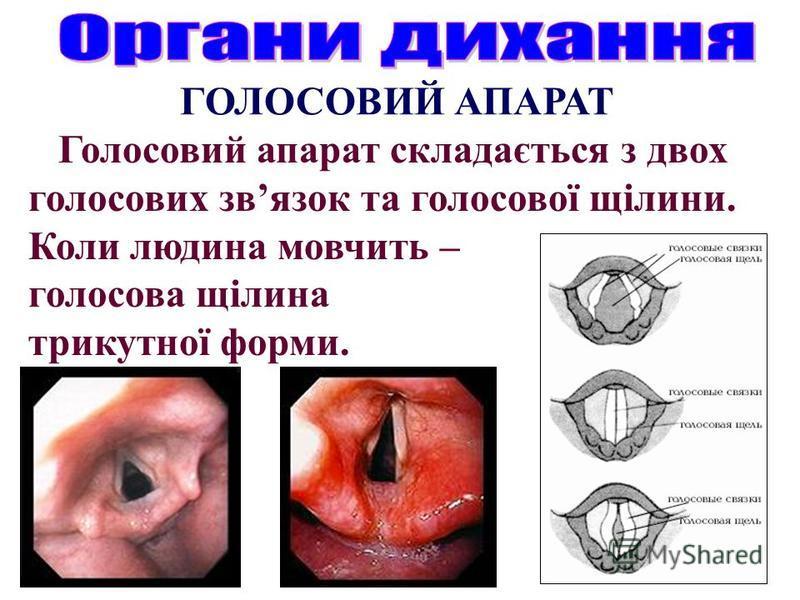 ГОЛОСОВИЙ АПАРАТ Голосовий апарат складається з двох голосових звязок та голосової щілини. Коли людина мовчить – голосова щілина трикутної форми.