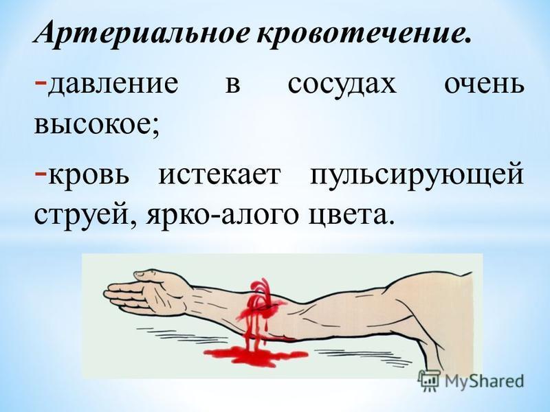 Артериальное кровотечение. - давление в сосудах очень высокое; - кровь истекает пульсирующей струей, ярко-алого цвета.