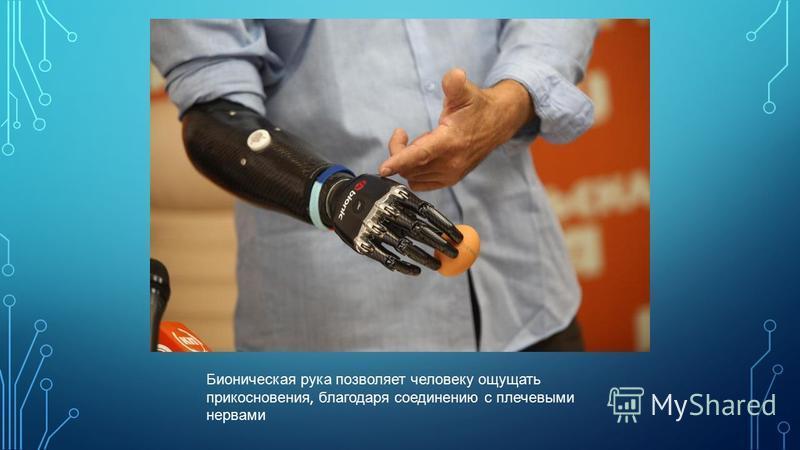 Бионическая рука позволяет человеку ощущать прикосновения, благодаря соединению с плечевыми нервами