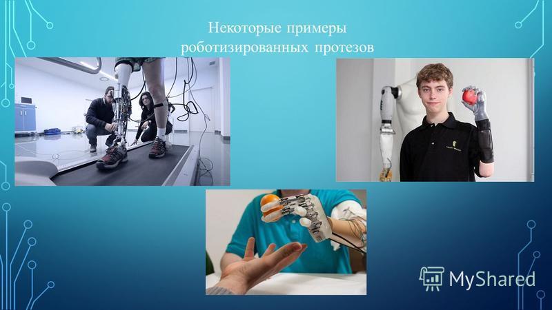 Некоторые примеры роботизированных протезов