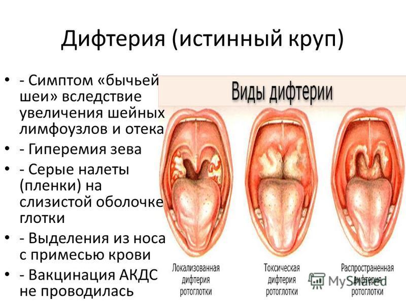 Дифтерия (истинный круп) - Симптом «бычьей шеи» вследствие увеличения шейных лимфоузлов и отека - Гиперемия зева - Серые налеты (пленки) на слизистой оболочке глотки - Выделения из носа с примесью крови - Вакцинация АКДС не проводилась