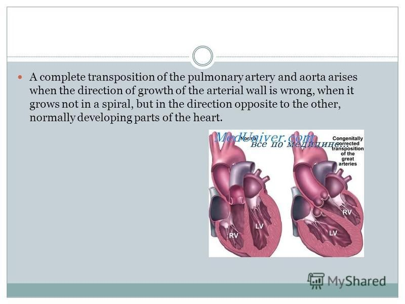 A complete transposition of the pulmonary artery and aorta arises when the direction of growth of the arterial wall is wrong, when it grows not in a spiral, but in the direction opposite to the other, normally developing parts of the heart.