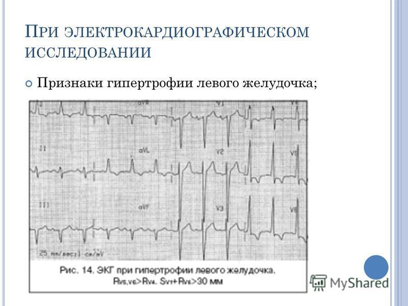П РИ ЭЛЕКТРОКАРДИОГРАФИЧЕСКОМ ИССЛЕДОВАНИИ Признаки гипертрофии левого желудочка;