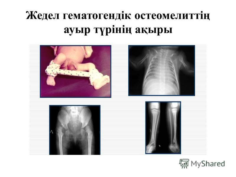 Жедел гематогендік остеомелиттің ауры түрінің ақыры