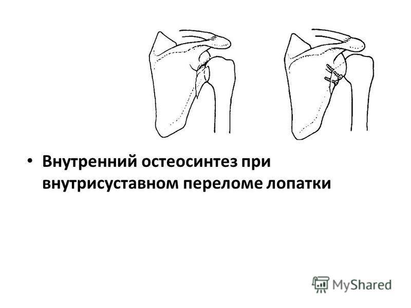 Внутренний остеосинтез при внутрисуставном переломе лопатки