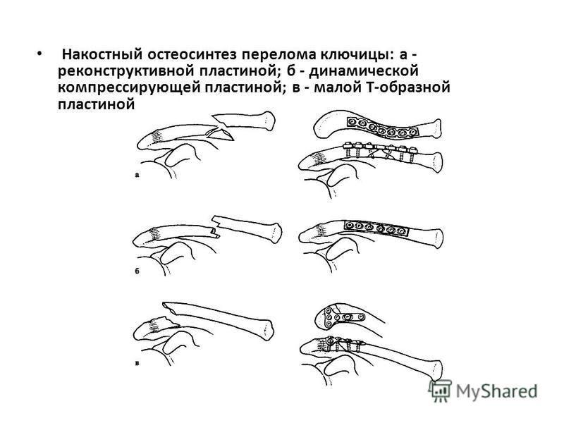 Накостный остеосинтез перелома ключицы: а - реконструктивной пластиной; б - динамической компрессирующей пластиной; в - малой Т-образной пластиной