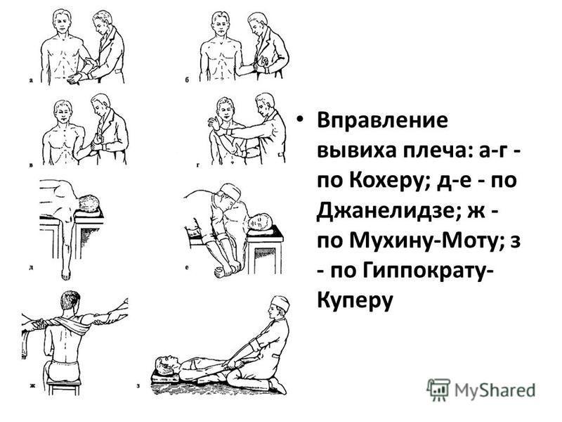 Вправление вывиха плеча: а-г - по Кохеру; д-е - по Джанелидзе; ж - по Мухину-Моту; з - по Гиппократу- Куперу