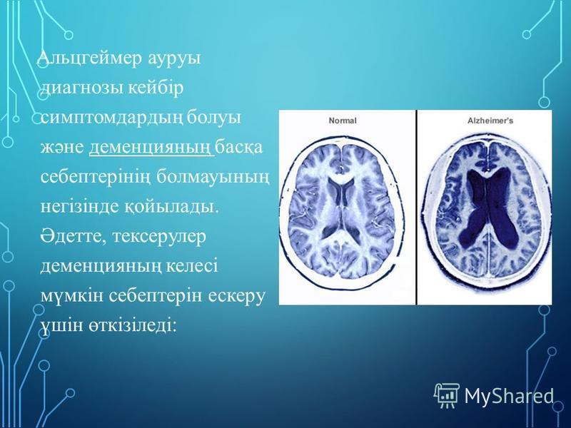 Альцгеймер ауруы диагнозы кейбір симптом дардың болуы және деменцияның басқа себептерінің болмауының негізінде қойылады. Әдетте, тексерулер деменцияның калесі мүмкін себептерін ескеру үшін өткізіледі: