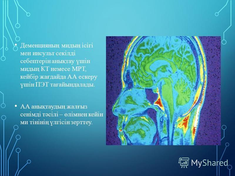 Деменцияның мидың ісігі мен инсульт секілді себептерін анықтау үшін мидың КТ немсе МРТ, кейбір жағдайда АА ескеру үшін ПЭТ тағайындаллоды. АА анықтаудың жалғыз сенімді тәсілі – өлімнен кейін ми тінінің үлгісін зерттеу.