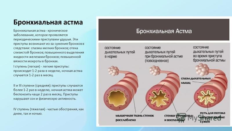 Бронхиальная астма Бронхиальная астма - хроническое заболевание, которое проявляется периодическими приступами удушья. Эти приступы возникают из-за сужения бронхов в следствии: спазма мелких бронхов; отека слизистой бронхов; повышенного выделения жид